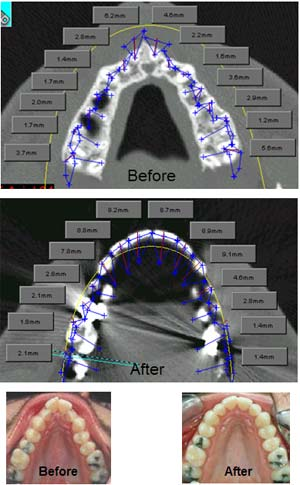 Cusp Tip to Root Tip Horizontal Measurement Occlusal From Axial View