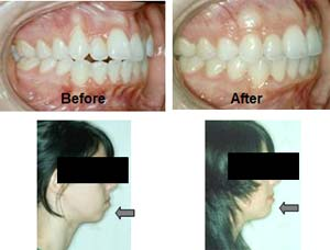 Addressing Gingival Recession, Dentoalveolar Deficiency and Weak Profile